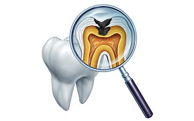 虫歯の再発を繰り返す方