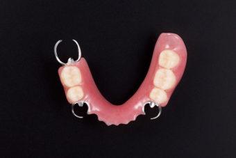 上顎部分義歯
