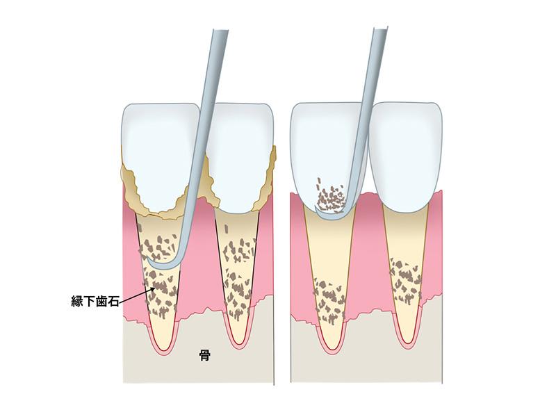 縁下歯石等の除去