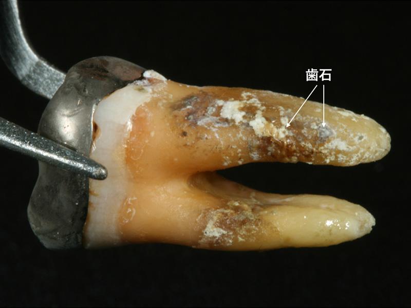 歯周病で抜歯した写真