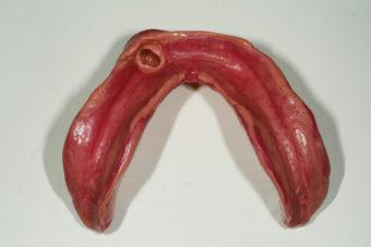 下顎義歯印象