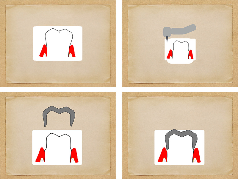 歯を全周削って冠を被せます