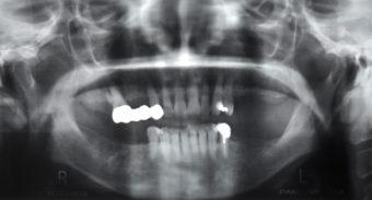 インプラント症例 術前